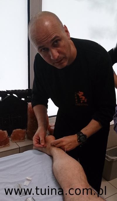 Krzysztof Skwark - akupunktura | Zabiegi Lecznicze Tui Na | Wrocław